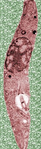 Trypanosoma. brucei.jpg