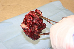 An image of squamous cell carcinoma after it has been removed