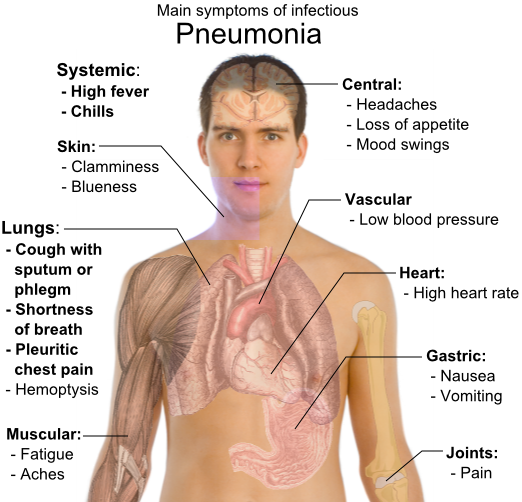 File:Main symptoms of pneumonia.png
