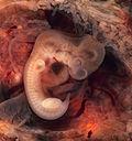 Пятинедельный эмбрион человека, видны все 33 позвонка и складки— будущие части головы