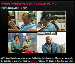 GMA's Robin Roberts shaves her head when her hair begins to fall out during chemotherapy treatment.