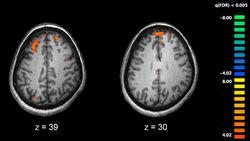 800px-Schizophrenia fMRI working memory.jpg