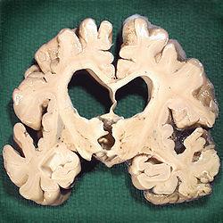 Brain affected by Alzheimer's.jpg