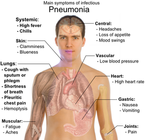 The symptoms of pneumonia are very similar to those of influenza, and can sometimes be mistaken as such.