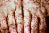 Syphilis sores.jpg